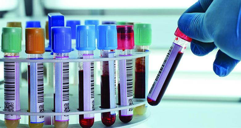Έκτακτη αιμοληψία για έλεγχο doping σε 46 ίππους